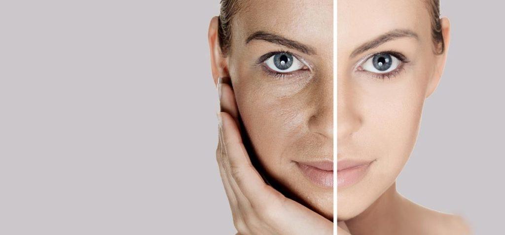 Astuces simples pour resserrer les pores dilatés