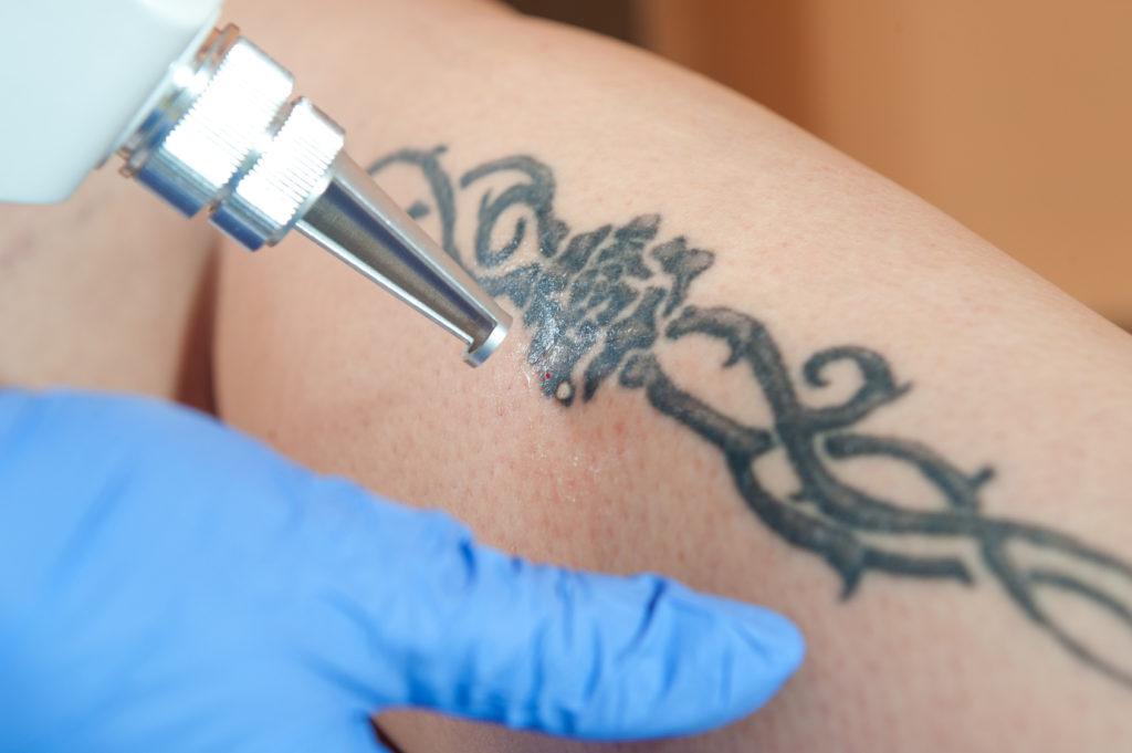 Comment fonctionne l'enlèvement de tatouage au laser ?