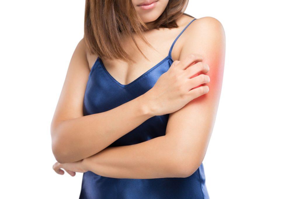 Comment apaiser sa peau après une piqûre d'insecte ?
