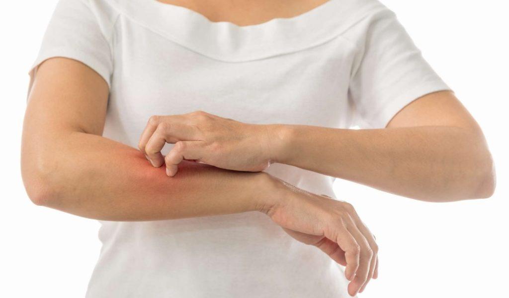Punaises de lit : quels sont les symptômes cutanés ?